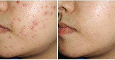 1 lon bia - 4 công thức trị sạch các loại mụn trên da