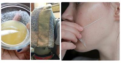 3 bước hết sạch mụn không cần nặn, tránh viêm nhiễm