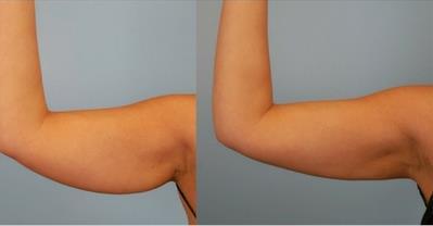 Bài tập 5 phút/ngày giúp giảm mỡ bắp tay hiệu quả