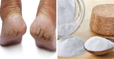 Bí kíp trị nứt gót chân sau 1 đêm không cần dùng thuốc
