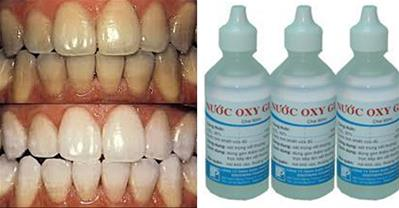 Cách làm trắng răng cấp tốc từ oxy già cực hiệu quả