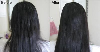 Cách trị rụng tóc từ bia cực hiệu quả ít ai ngờ