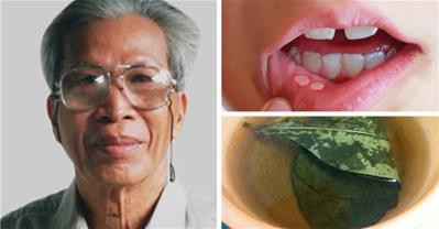 Giáo sư Tất Lợi chỉ cách trị nhiệt miệng sau 1 đêm